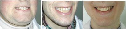 улыбки