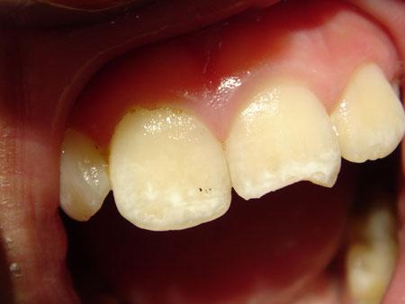 Воссоздание формы зуба
