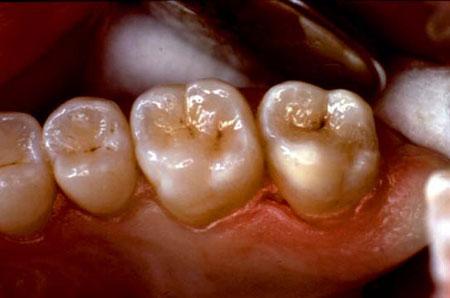 Отпрепарированы полости 26 и 27 зубов